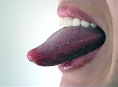 porque la lengua se pone blanca y arde