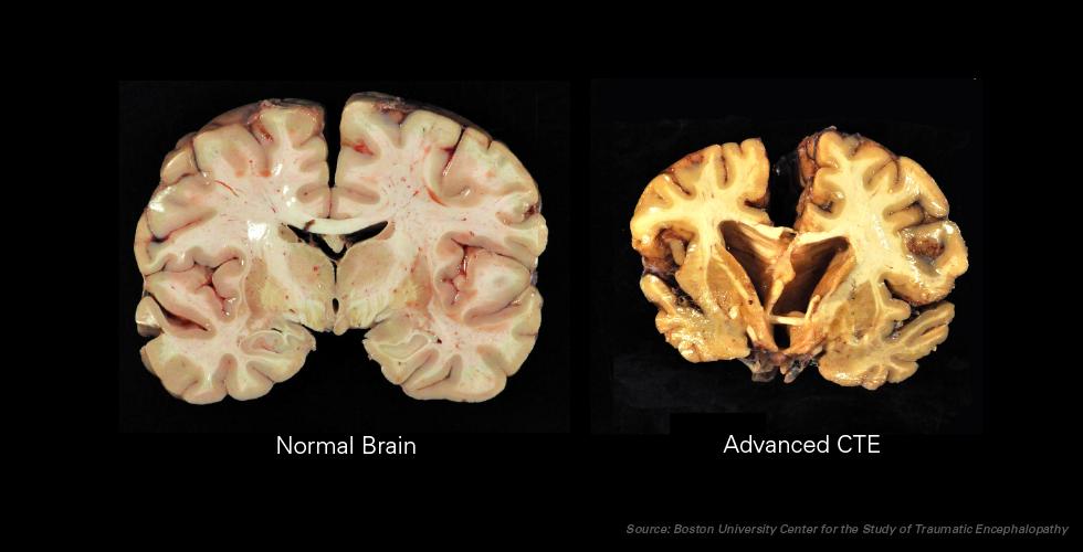 Diferencias entre cerebro normal y cerebro con CTE
