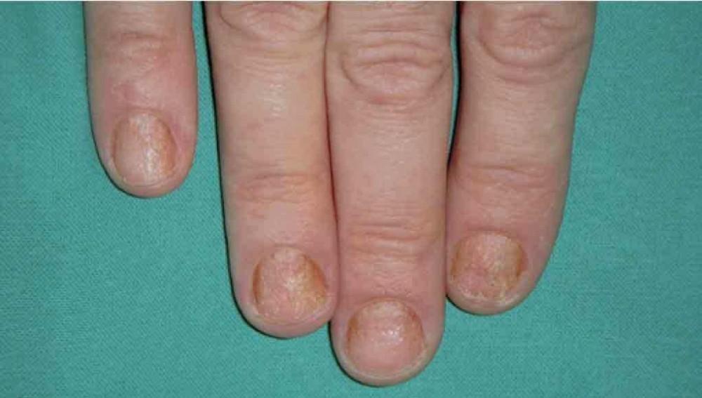 Tener una enfermedad en la piel puece causar psoriasis