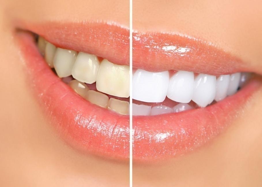 remedios caseros científicamente probados - dientes blancos