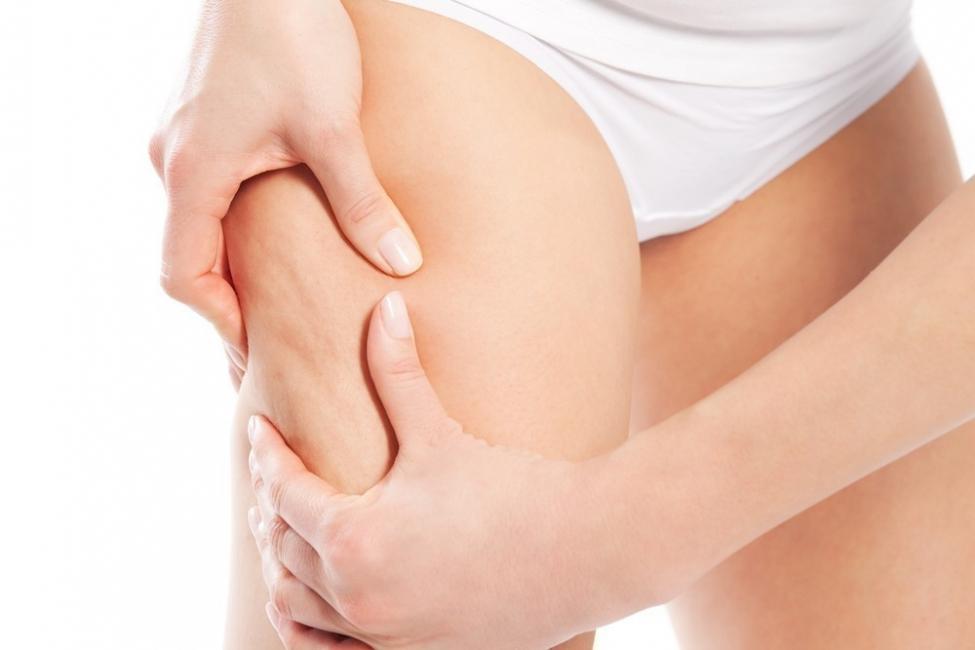 Cómo usar el hueso del aguacate para combatir la celulitis y aflojar piernas cansadas