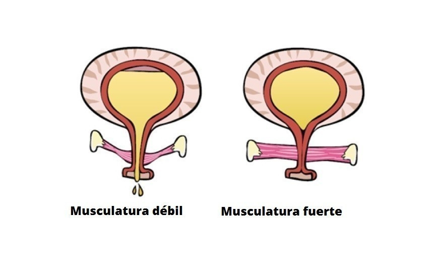 músculos pélvicos incontinencia
