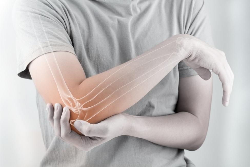 dolor articulaciones fiesta