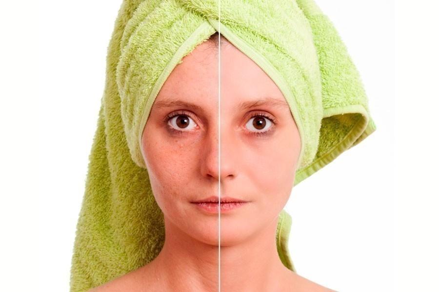 eliminar manchas en la piel - rostro