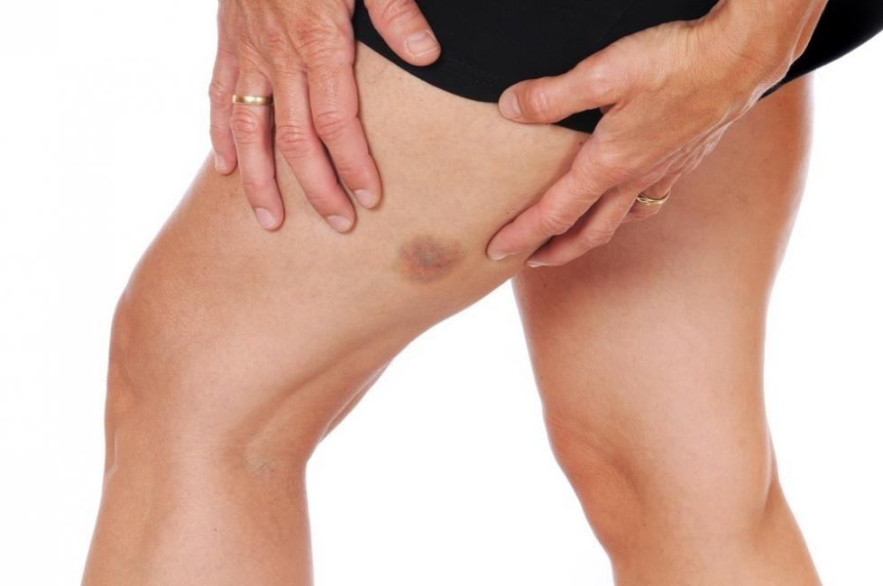 hematomas de edad avanzada en las piernas