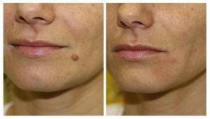 Como quitar una verruga de forma natural