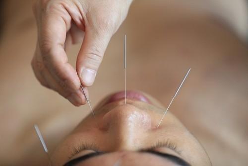 La acupuntura pertenece a la medicina tradicional asiática