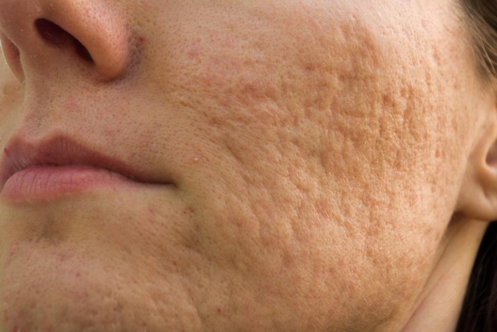 eliminar cicatrices o marcas de acné