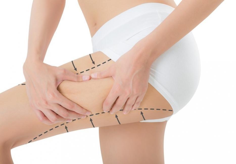 como eliminar la grasa entre los muslos