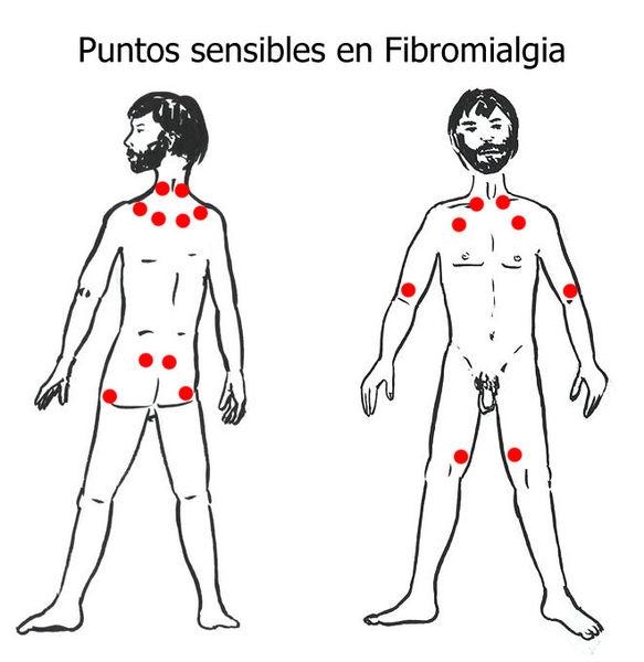 Puntos-sensibles-fibromialg