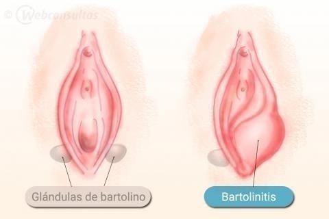 Las glándulas de Bartholin están situadas en cada lado de la abertura vaginal
