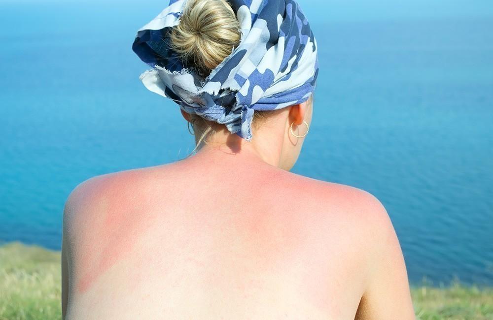Loción post solar casera y natural - mujer quemada por el sol