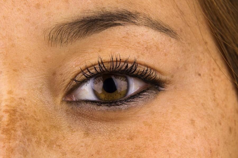 eliminar manchas en la piel - ojos