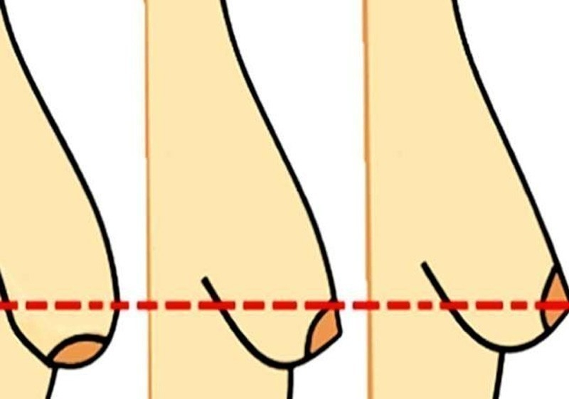 causas de senos o busto caido
