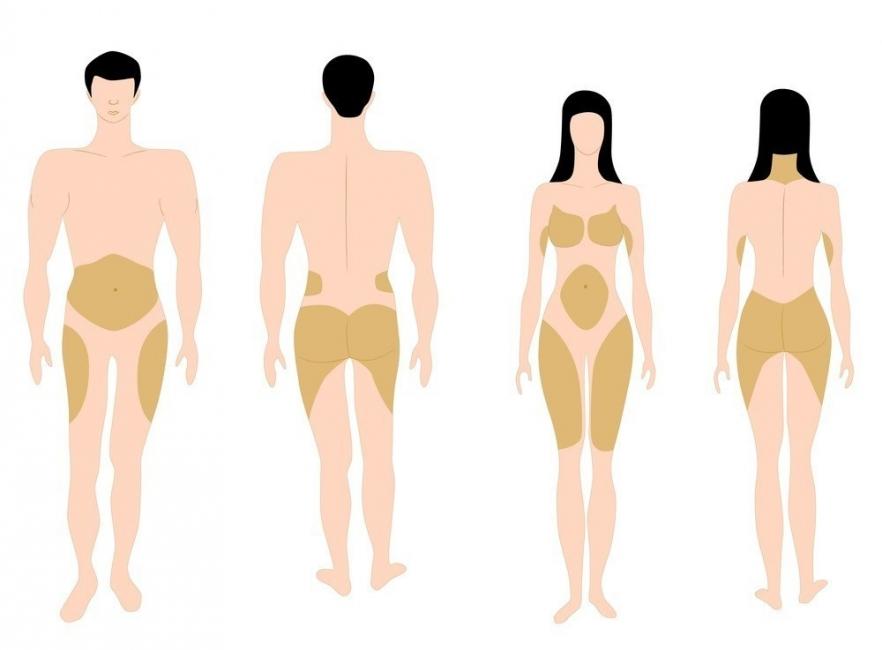 Acumulación de grasa