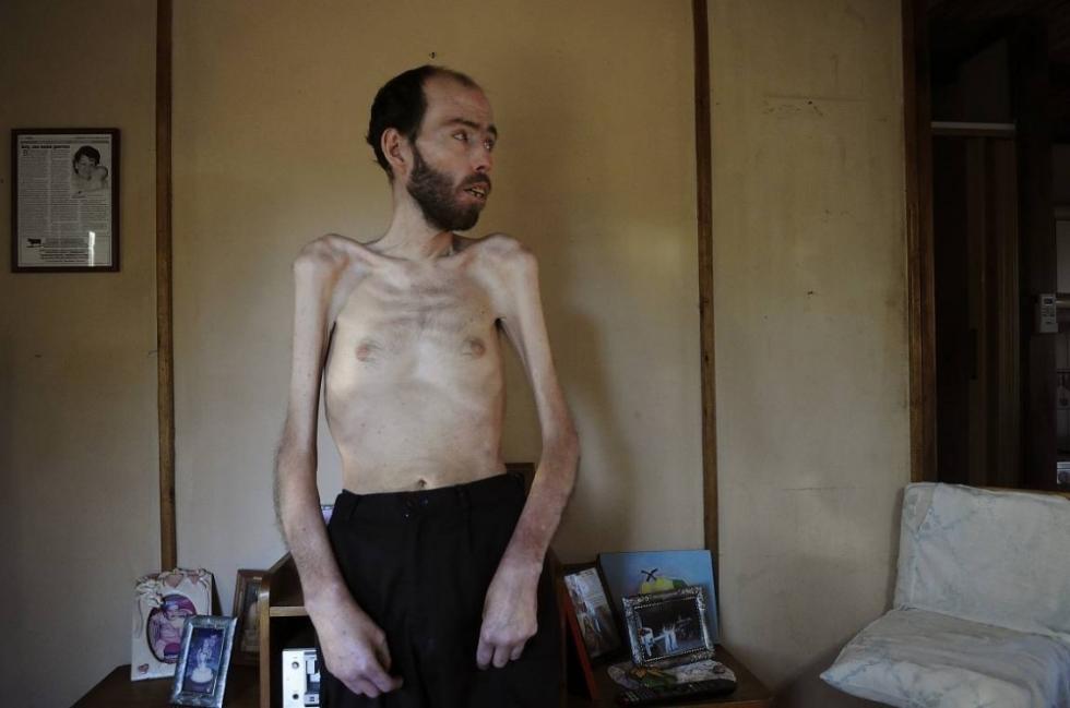 La historia de un hombre que fumigaba con agrotóxicos- fabian tomasi