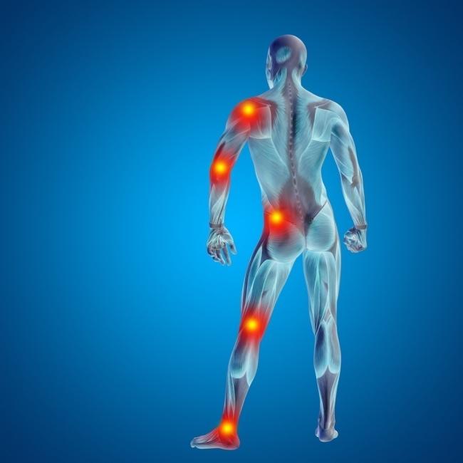 Fibromialgia y gluten - dolor muscular