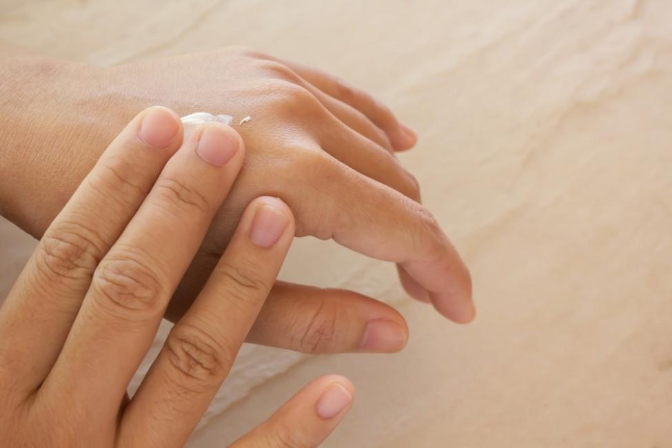 manos resecas