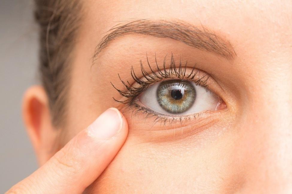 remedios caseros bolsas de ojos