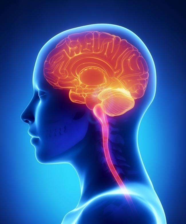 ACV, infarto cerebral o accidente cerebro-vascular