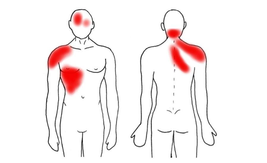 Este mapa del dolor te ayudará a descubrir si funciona mal algún ...