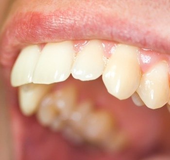 sarro dental4