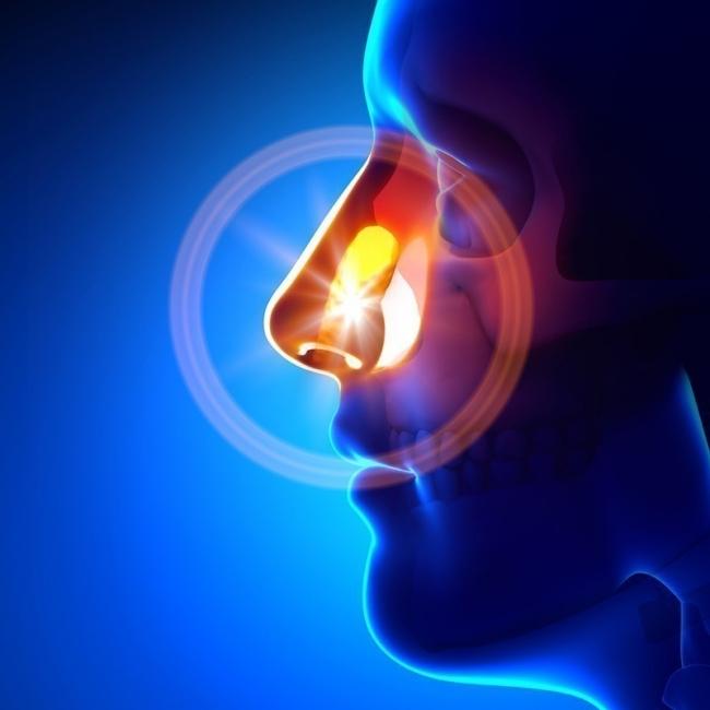 dolor de cabeza sinusal