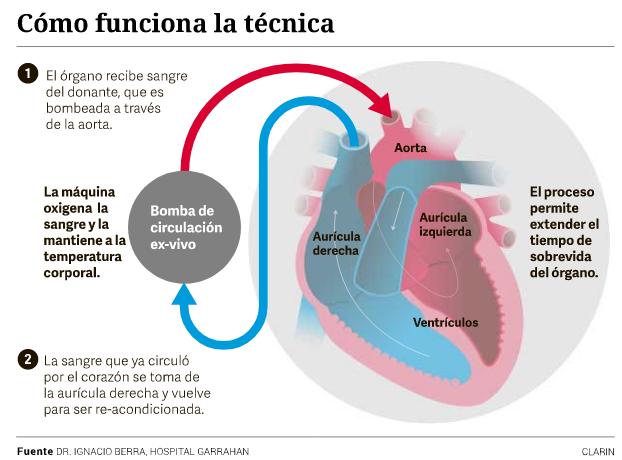 El prototipo conserva el corazón antes de ser implantado
