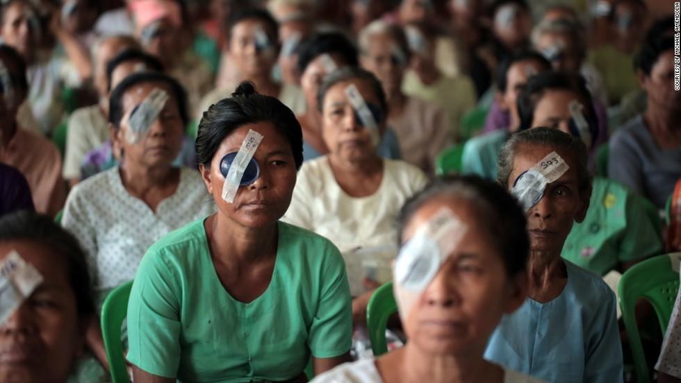 Doctores solidarios curan ceguera -pacientes