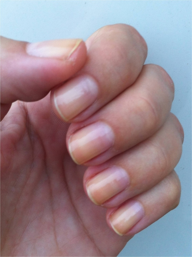 Qué dicen tus uñas de tí- uñas amarillentas