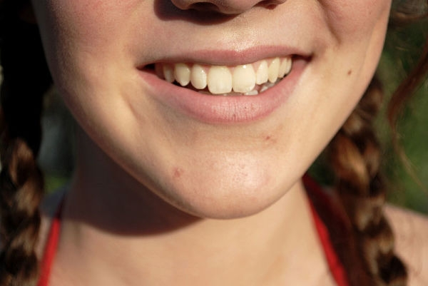 sarro dental2