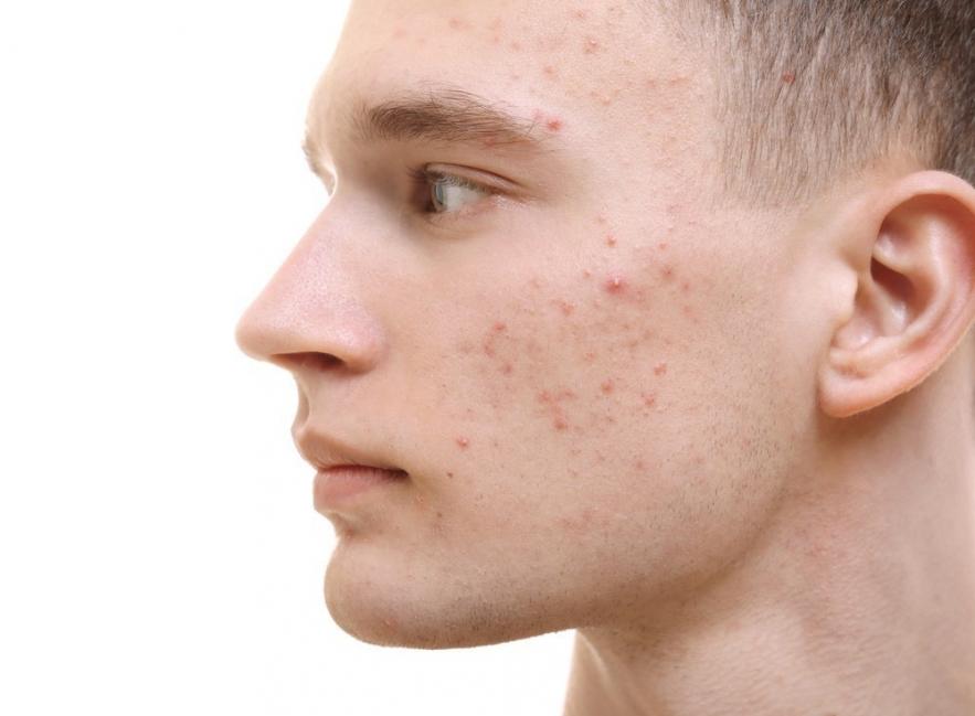 manchas en la piel por problemas de riñon