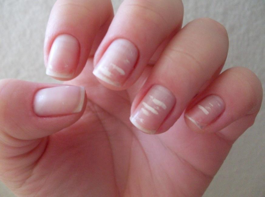 Qué dicen tus uñas de tí- uñas con manchas blancas