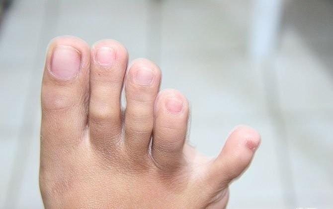 dedo pequeño separado