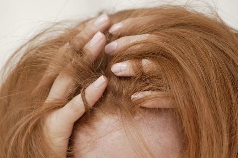 La tricotilomanía es un tipo de trastorno de control impulsivo