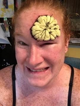 Bethany Greenway fue afectada por una rara forma de melanoma