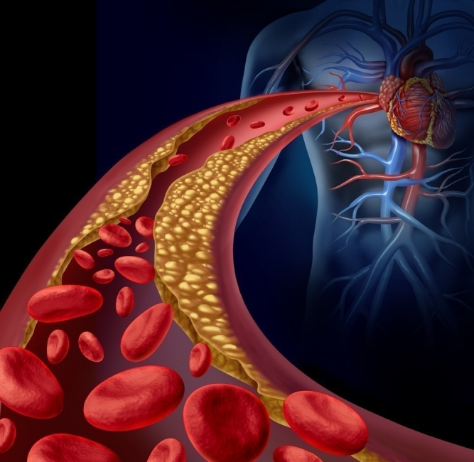 arterias tapadas