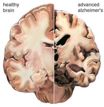 El Alzheimer se caracteriza en su forma típica por una pérdida de la memoria inmediata