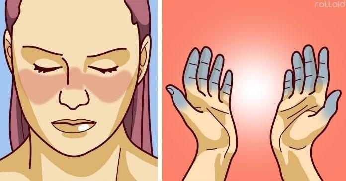 lupus sintomas