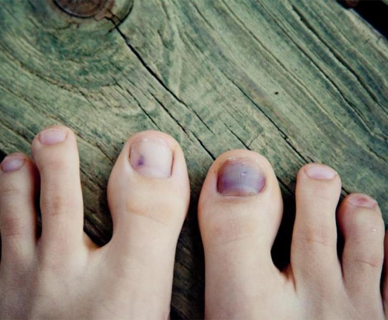 Qué dicen tus uñas de tí- uñas moradas