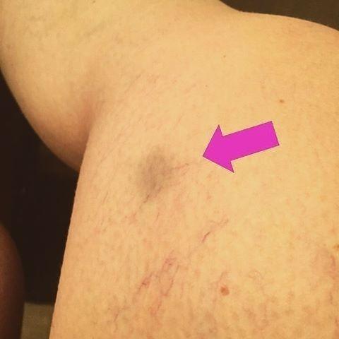Acumulación de tejido adiposo a los lados de las caderas y los muslos