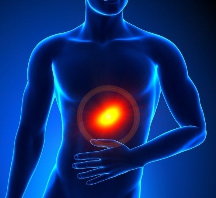 acidez y gastritis