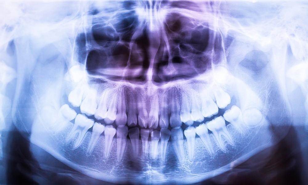significado de los sueños - dientes