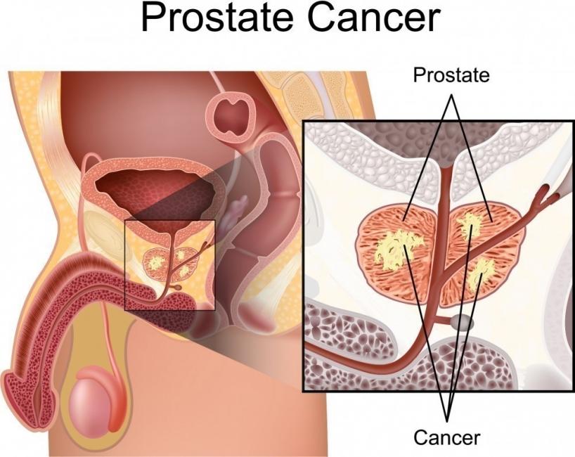cáncer de próstata mujer marrón