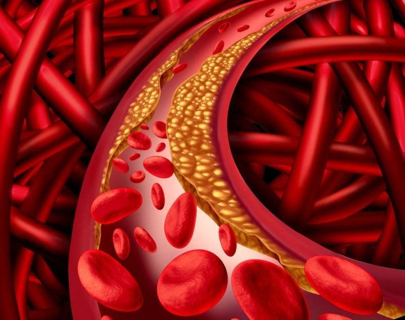 Colesterol: alimentos ricos en grasas