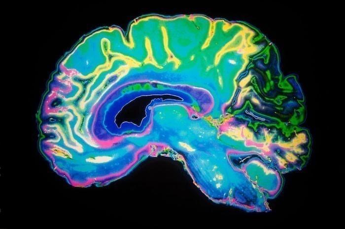 Región del cerebro