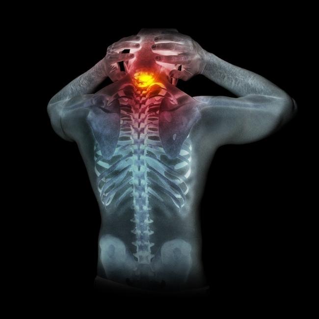 como quitar dolor de cuello cuando duermes mal