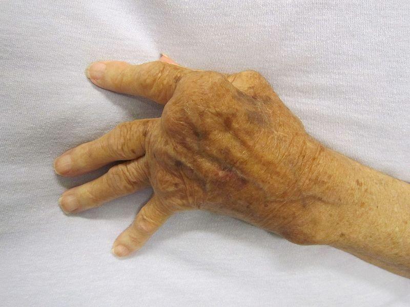 Mano afectada por artritis