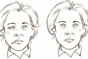 La parálisis de Bell paraliza o debilita una parte de la cara