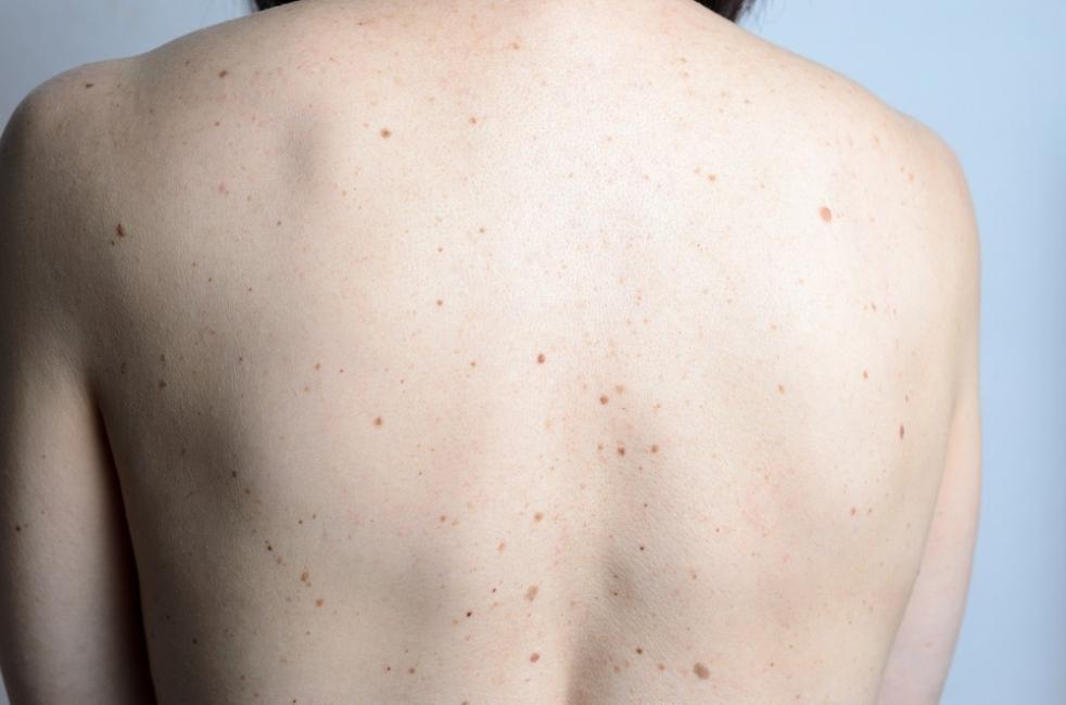 lunares en la espalda